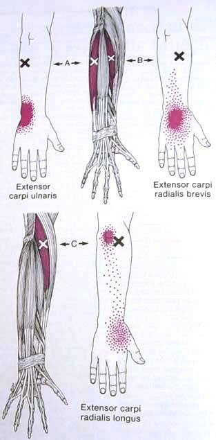 Extensor Carpi Ulnaris Trigger Point Diagram