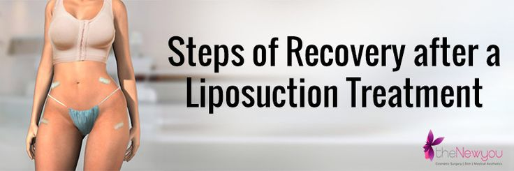 #Liposuctionsurgery is one of the most prevalent #cosmeticsurgery in India and around the world and it is preferred by #celebrities and common people