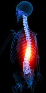 Disc Osteophyte Complex https://www.laserspineinstitute.com/back_problems/spinal_bone_spurs/disc_complex/