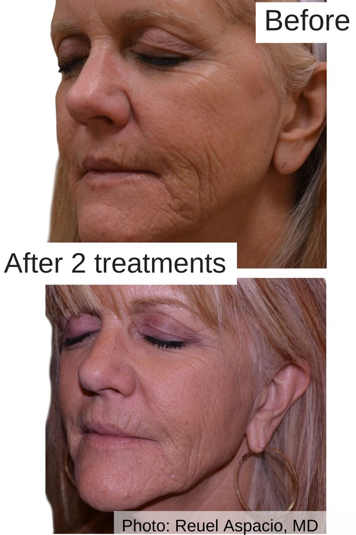 Venus microcurrent facial rejuvenation