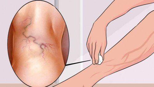 Als Krampfadernbezeichnet man dauerhaft geweitete Venen, die zu Durchblutungsstörungen führen.
