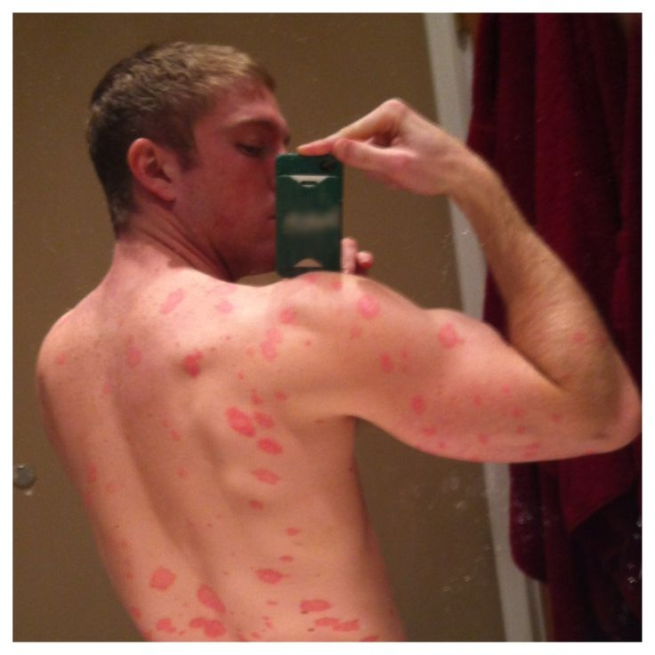 How to Cure Psoriasis Naturally - This guy has a bunch of videos on this subject.   Some can be a little long, BUT his message is great and very helpful
