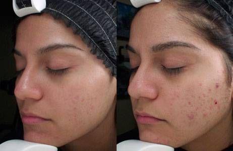 El peeling químico casero con ácido glicólico es un tratamiento para rejuvenecer la piel de la cara. Realizándolo en casa tiene muchos beneficios además de ahorrate un dinerillo.