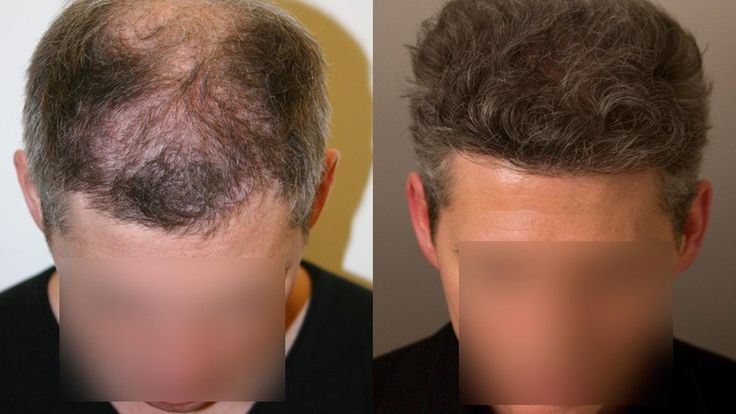 FUE Hair Transplant Surgery and Hair Restoration Cost in Turkey