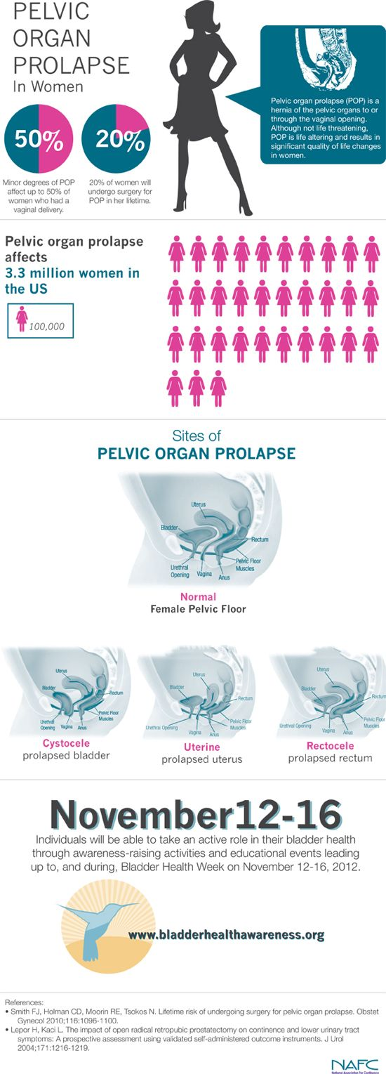 Prolapse Infographic | Bladder Health Awareness