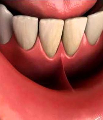 A frenum is a muscle attachment which extends from inner lip to the oral mucosa. If the frenum is markedly large and high, very close to the gum margins, it might result in gap between the two upper front teeth. Frenectomy is a procedure designed to surgically remove the frenum. For more information visit our website or call us for a free appointment at 03 98171860 #MelbournePeriocare #DrNupurKataria #Periodontics #NoReferralRequired