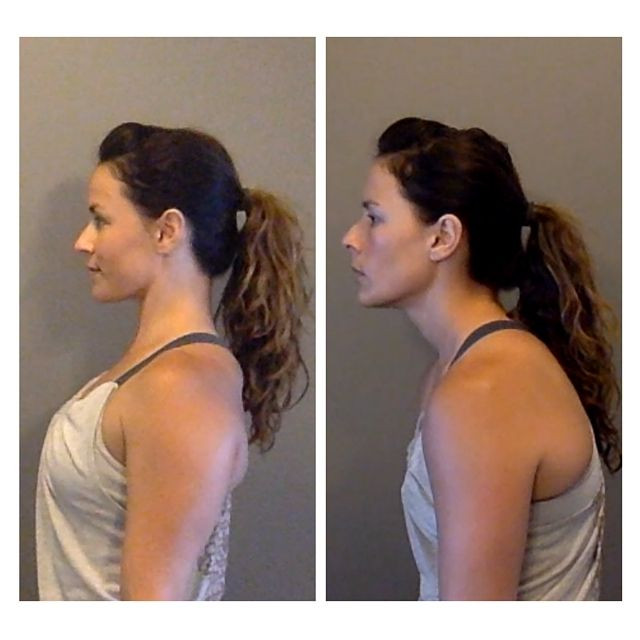 """Posture: 1)How to fix Forward Head Position: http://fitforreallife.com/2015/08/improve-your-posture-by-fixing-forward-head-position/ 2)Missing thoracic extension http://robbwolf.com/2015/06/05/breathing-its-for-everyone/ 3)scapulae shift explained including why you don't want to do the traditional traditional """"down and back"""" shoulder cue for your shoulders, as you're flexing your lower trapezius and rhomboid muscle fibers to depress and retract the scapulae; you may make your levator…"""