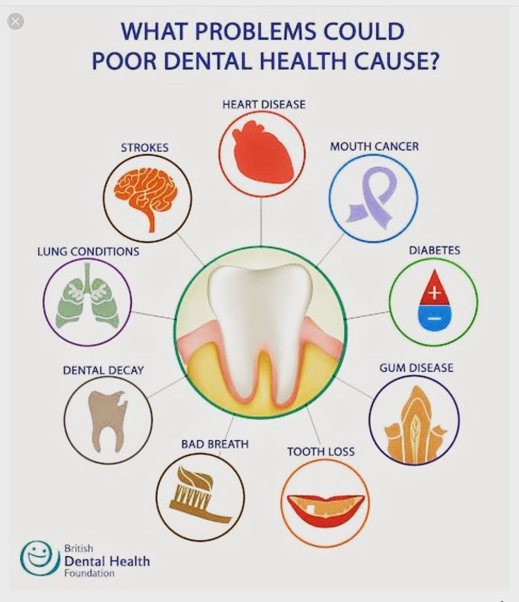A healthy mouth is freedom from #bleeding #crowding #pocket depths #inflammation #brokenteeth #infections #badbreath #missingteeth #pain #decay #cancer  have you seen a dentist lately? Call us 760)334-0128