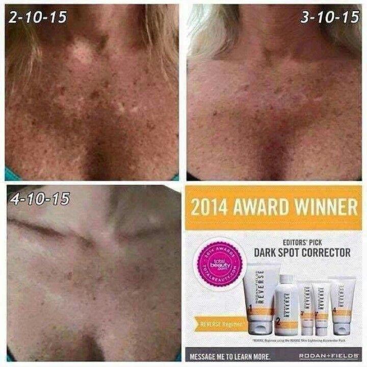 Dark spots??? Let us help you! Rodan and Fields. ... #beautifulskin #healthyskin