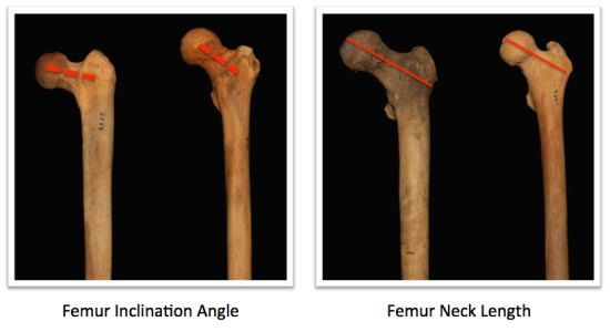"Femur neck variations ""perfect"" squat form limitations article"