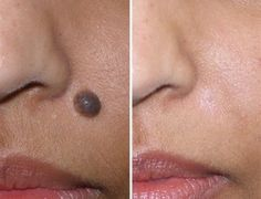 Remove Moles at home with Apple Cider Vinegar, Step by Step procedure