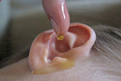Domáci liek proti ušnému mazu a ušným infekciám. Účinky sú skvelé!