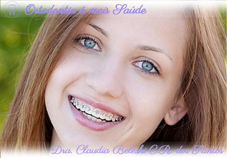 """Em Curitiba, a Dra. Claudia Beleski C. R. dos Santos comenta que no passado todas as pessoas que usavam aparelho ortodôntico, tinham um """"sorriso metálico"""". Atualmente, isto é opcional, pois existem diversos tipos de aparelhos, inclusive os estéticos – delicados e quase imperceptíveis. Leia mais em http://www.ortodontiaemaissaude.com.br/2015/12/escolhendo-o-aparelho-fixo.html"""