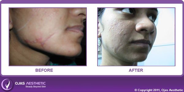 If you have any questions regarding Scar Removal Surgery or want to know more about our doctors.