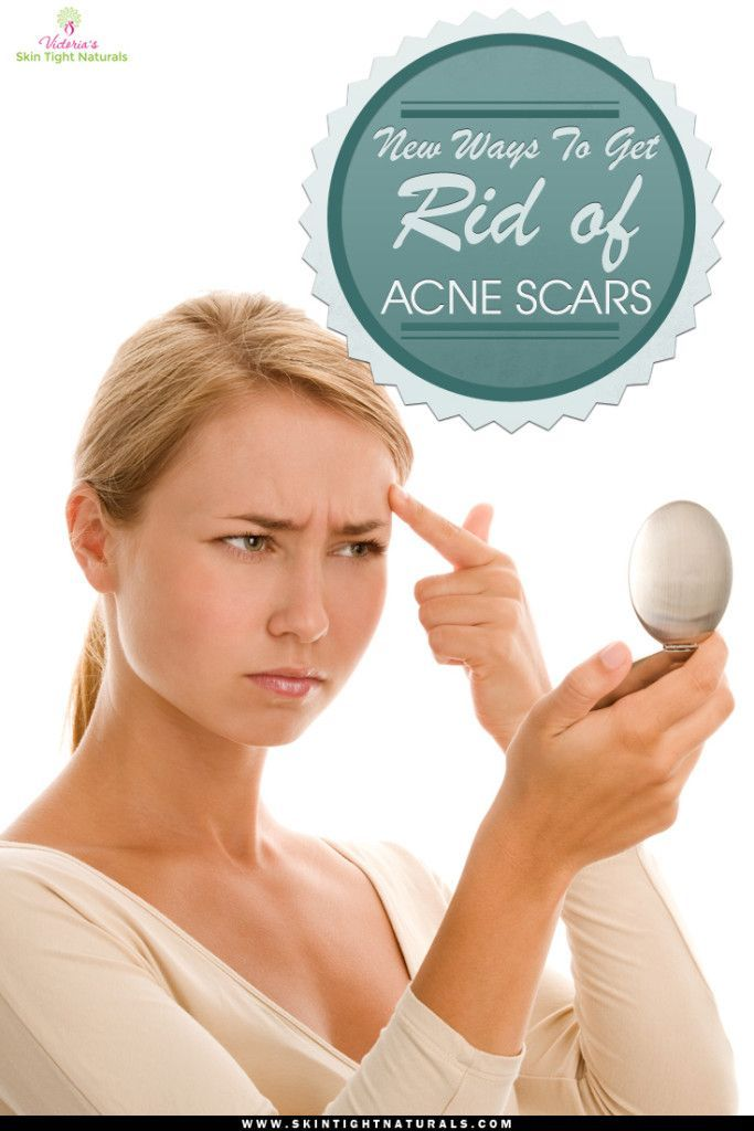 New Ways To Get Rid of Acne Scars.  Find more relevant stuff: skintightnaturals.com