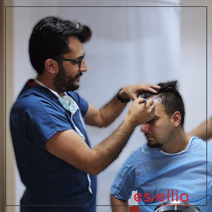 #العراق #الامارات #المغرب #الاردن #مصر #دبي #قطر #عمان #تونس #تركيا #اسطنبول #دبي #زراعة_الشعر #السعودية #الكويت #البحرين # #sac #saçekimi #türkiye #istanbul #uzman #saç #sacekimi#uzman #saçekimiuzmanı #prp #hair #hairtransplant #hairtransplantation #türkiyede  0541 304 18 65 http://turkrazzi.com/ipost/1517449169814757447/?code=BUPD_rrhSBH