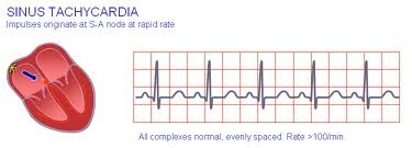 Sinus tachycardia: Definition, Causes, Symptoms, Treatment, Medical Examination and Consultation doctor