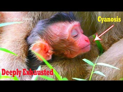 My god!,Severe condition newborn baby deep exhausted ...