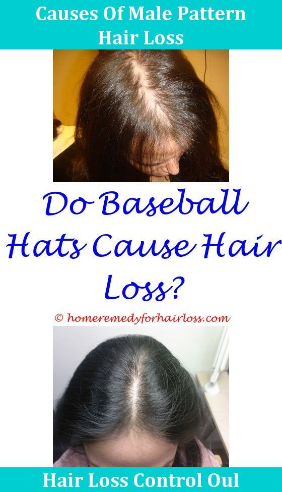 How much beta sitosterol for hair loss
