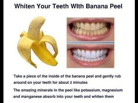 Teeth whitening with Banana Peel