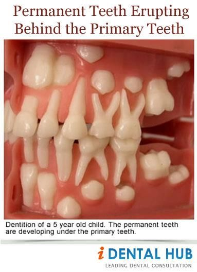 Appearance of Shark teeth in infants is quite common and is seen at an age group of 6-7 years when permanent lower incisors erupt. In this condition, both milk teeth and permanent teeth are present in the mouth that resembles the dentition of shark.