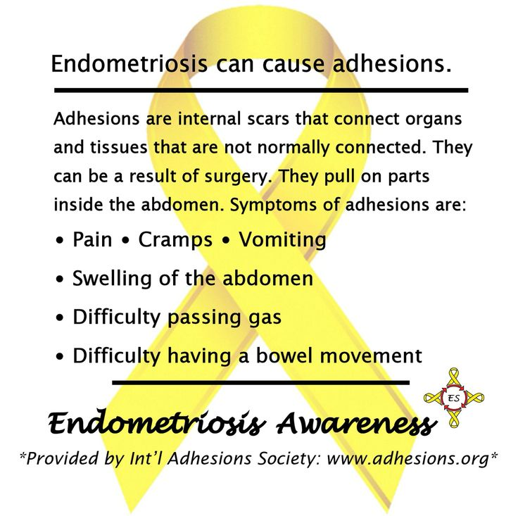 endometriosis essay Endometriosis is defined as the abnormal growth of endometrial cells this disease affects over 7 million women and girls in the usa alone, with several million worldwide that is the same cell that makes up the lining of your uterus and that we shed each month in our menstrual process.