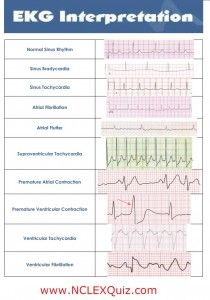 10 Common Heart Rhythms Cheat Sheet