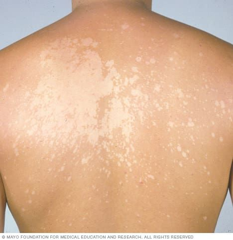 The experts agree that tinea versicolor most often causes white or light spots on the skin, but according to the AAD the spots can also be pink, salmon, red, tan, or brown. It all depends on the individual, because everyone's skin is different. Tinea versicolor affects people of all different races and skin tones, although it tends to be more visible on darker skin tones. If the fungus isn't treated, the spots will increase in size and spread, connecting into larger patches of white or pink…
