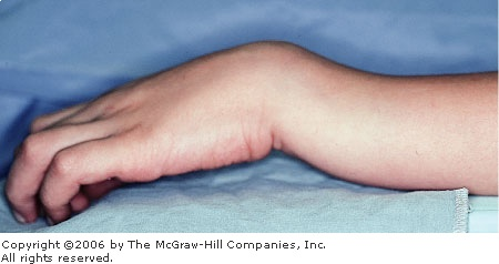 Colles' Fracture The classic dinner-fork deformity is demonstrated in this photograph. The distal forearm is displaced dorsally