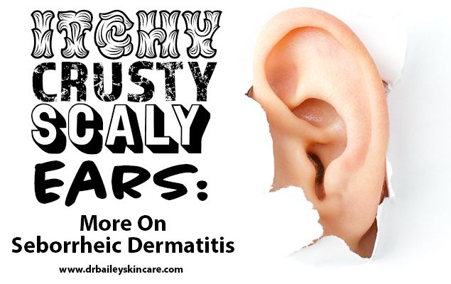 Do you have itchy, crusty, scaly ears? Dermatologist Dr. Cynthia Bailey shares simple and easy tips to treat Seborrheic Dermatitis (aka dandruff).