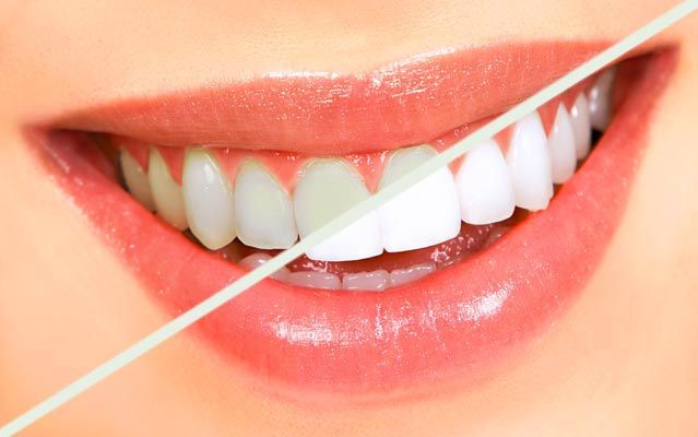 Tooth bleaching, also called enamel whitening, is usually a popular course of action generally speaking the field of dentistry. #TheBestTeethWhitening