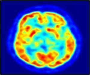 Scientists Reveal the Mechanism Underlying Hippocampal Neuronal Injury After TBI