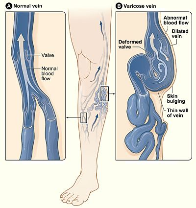 The illustration shows how a varicose vein forms in a leg. Read the latest NICE guidance     on diagnosing and treating the condition http://www.bmj.com/content/347/bmj.f4279