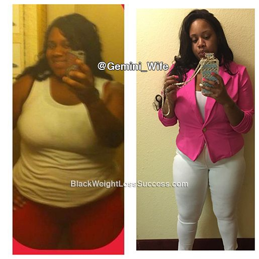 Root dr kevin young flowood ms weight loss