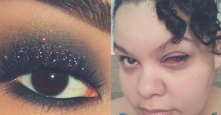 Een moeder van 2 moest haar oog laten verwijderen nadat ze een vreselijk make-up ongeluk had gehad. Erica Diaz was na een avondje stappen met vrienden haar gezicht aan het reinigen toen ze iets vreemd in haar ooglid voelde …