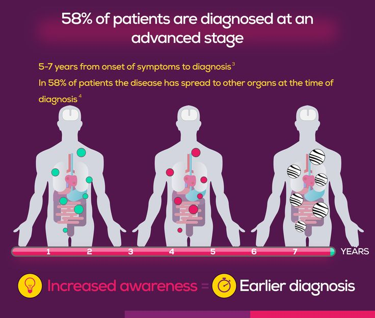 For more than 50% of patients the disease  has spread to other organs at the time of diagnosis
