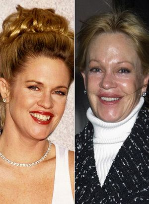 Melanie Griffith - Bad Celebrity Plastic Surgery Before And After