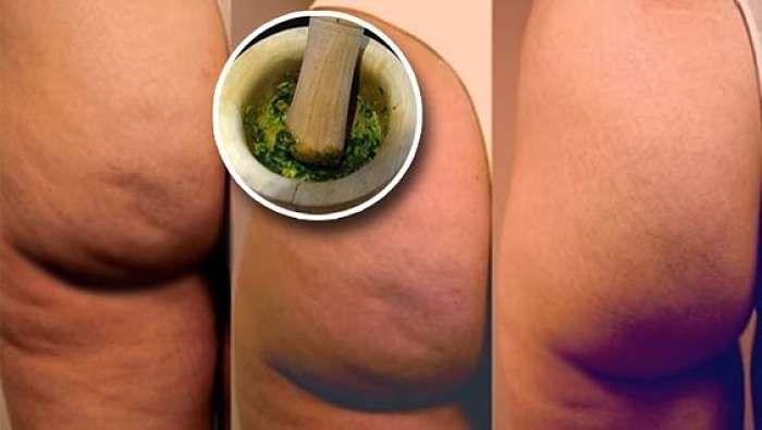 Orégano y aceite de oliva para eliminar la celulitis. Cada vez más cerca del verano y no sabes qué hacer con la celulitis? No te aflijas ni recurras a...