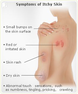 Itchy Skin: Estrogen is responsible for stimulating the production of collagen, a fibrous protein that provides strength and support to the skin. As estrogen production diminishes around the time of menopause, dry itchy skin becomes a very common symptom. The decline in skin thickness and collagen production appears to be most rapid in the years before menopause. Low estrogen levels also decrease the body's ability to retain moisture, and slow down the body's production of natural skin oils.