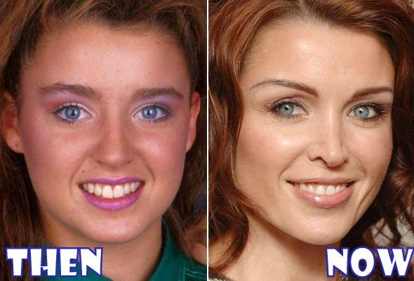 dannii-minogue-plastic-surgery-before-after.jpg