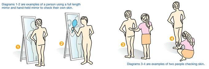 Step by Step How to check your skin for signs of skin cancer by Cancer Council.
