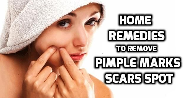 How to remove pimple marks? Home remedies to get rid of pimple marks fast and naturally? How to remove pimple scars? Home remedies for spots on face.