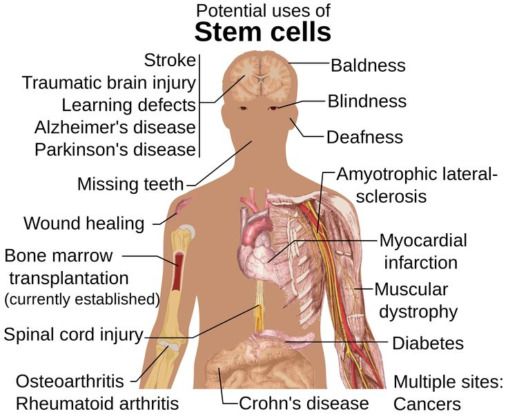 the best stem cells ideas stem cell therapy  stem cell therapy helps muscle regeneration in patients burns