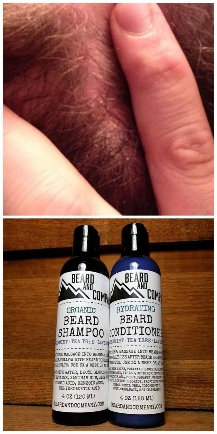 Treat and prevent beard dandruff with all-natural beard shampoo and conditioner with tea tree oil.