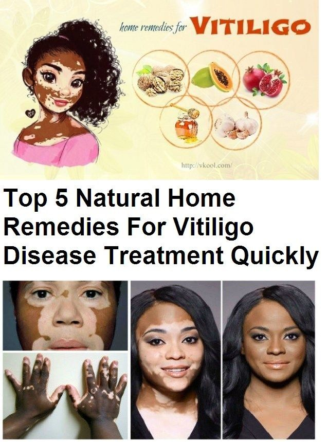 Top 5 Natural Home Remedies For Vitiligo Disease Treatment Quickly Vitiligo is an ugly skin disease in which the skin cells that produce melanin and pigment