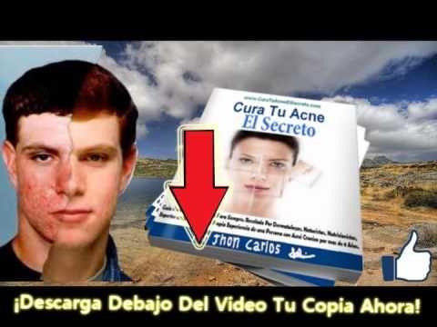 cómo curar rápidamente las cicatrices del acné cómo eliminar el acné rápidamente - http://solucionparaelacne.org/blog/como-curar-rapidamente-las-cicatrices-del-acne-como-eliminar-el-acne-rapidamente/