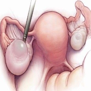 Different Types Of Ovarian Cysts
