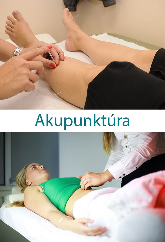 Kevéssé ismert talán, hogy az akupunktúra egy komplex gyógyító rendszer, a Hagyományos Kínai Orvoslás egyik  terápiás módszere.