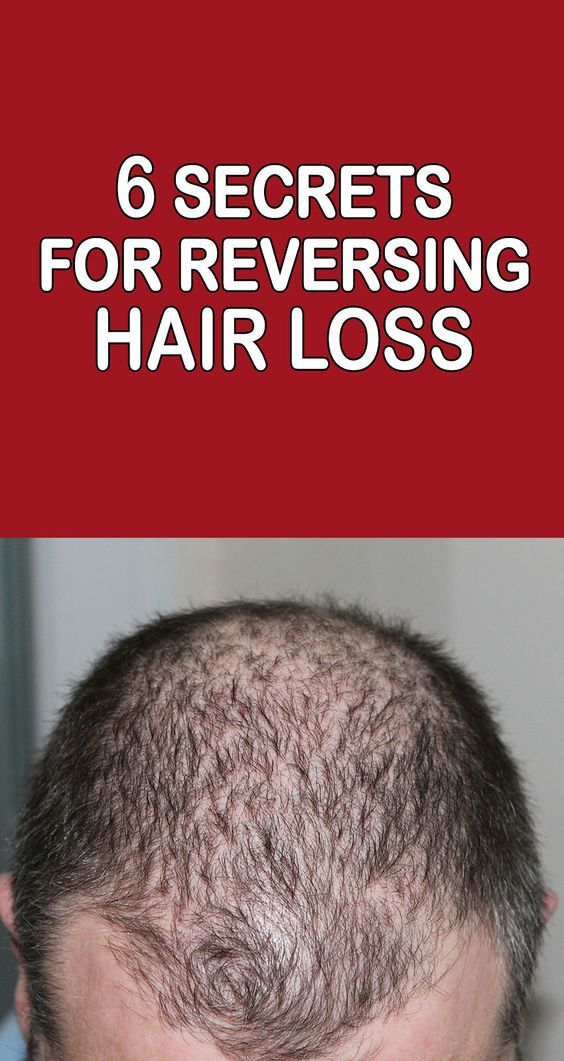 The cause of hair loss is linked to an increase in an androgen hormone called DHT (DiHydroxy Testosterone). Managing this and other hormones is key to halting and reversing hair loss.