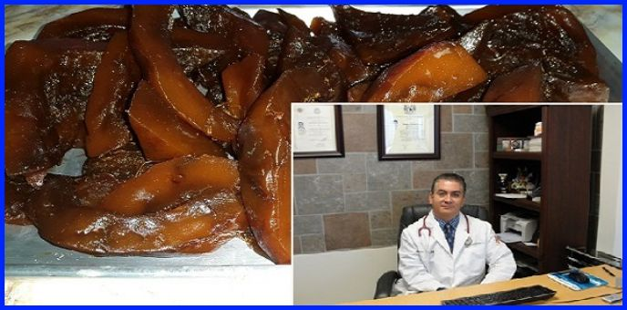 Mexican Doctor Reveals: A Cure For Joint Pain And Bone Regeneration, Which Also Restores Vision And Improves Memory 80%.